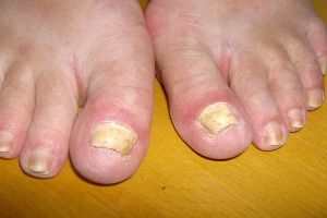 Fungal big toe nails